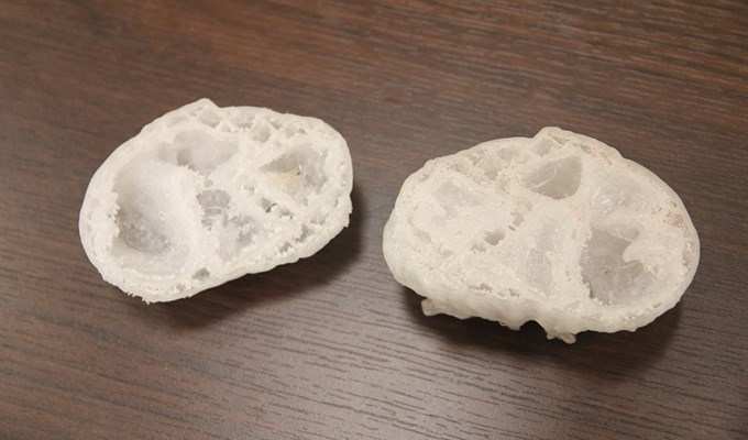 Томские ученые начали печатать детские сердца на3D-принтере